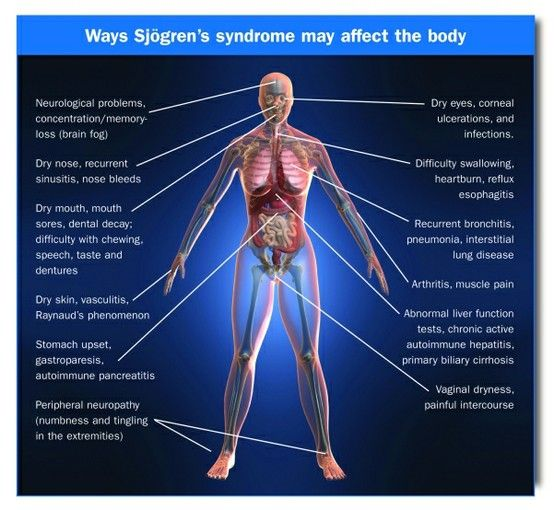 a20305128857b3d6a46d4dfba38858f7--chronic-fatigue-syndrome-chronic-illness.jpg